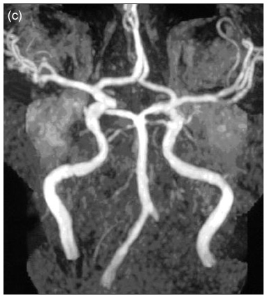 Fabry disease neurological symptoms: Magnetic resonance imaging - Occlusion of the left vertebral artery